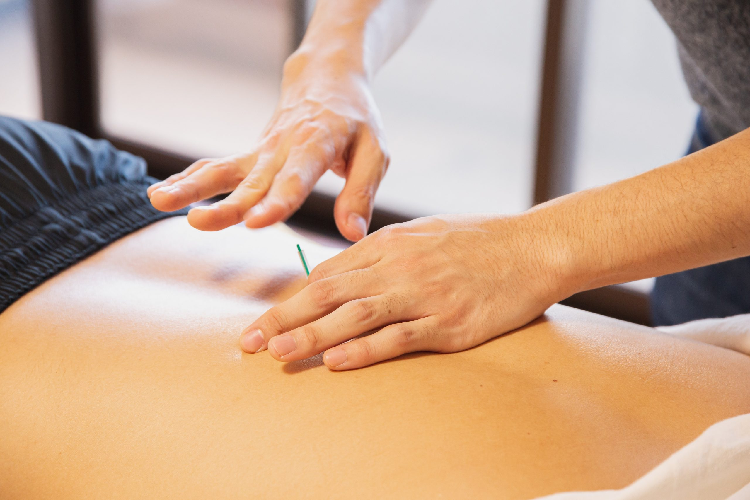 Acupuncture on the lower back
