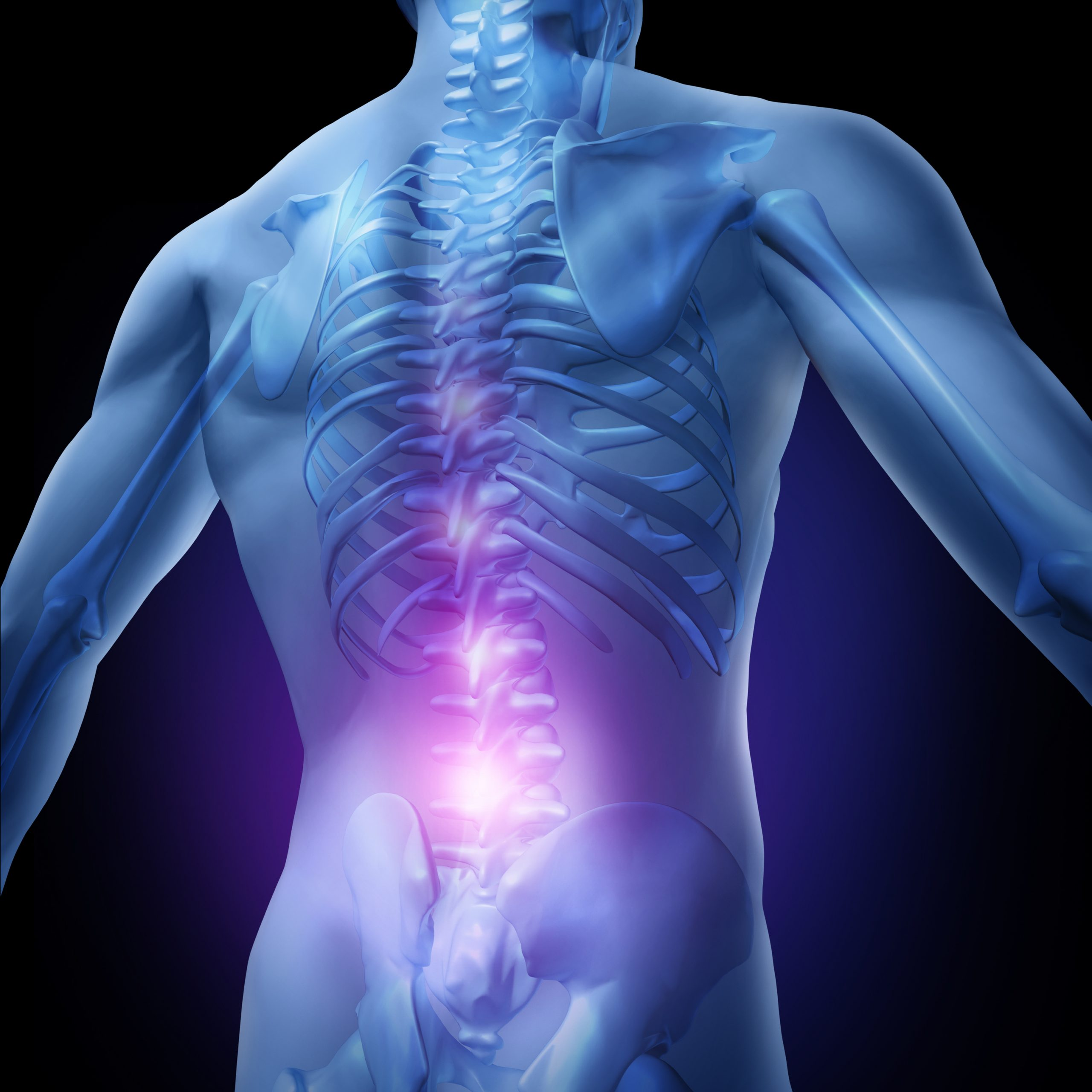 Low back pain with associated structures